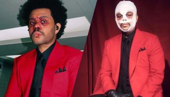 """The Weeknd finalmente explica conceito dos machucados, faixas e intervenções cirúrgicas da era """"After Hours"""""""
